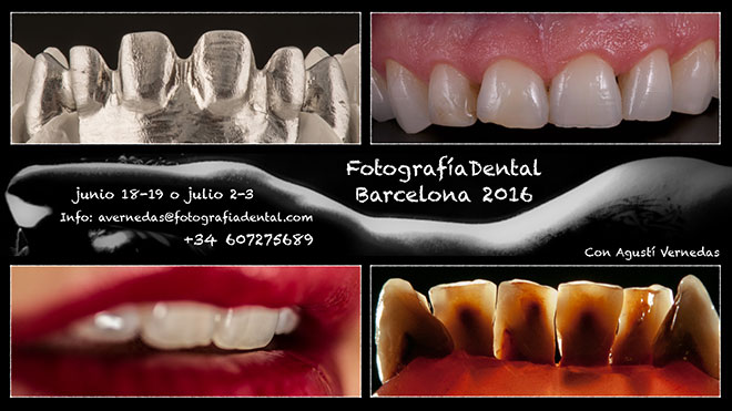 curs-foto-dental-bcn-2016-06-01mini.jpg